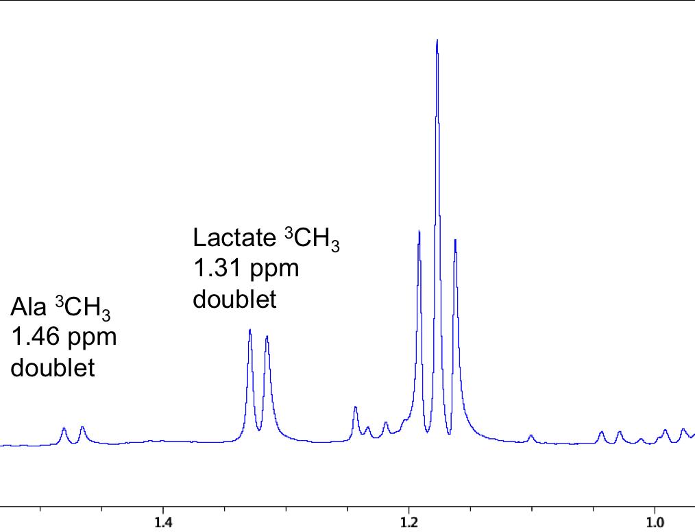 UltraBem – CanonicalNMR による乳酸の検出、各組織の乳酸濃度一覧